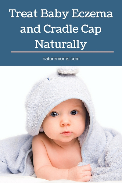 Treat Baby Eczema and Cradle Cap Naturally pin