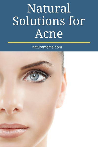 Natural Solutions for Acne