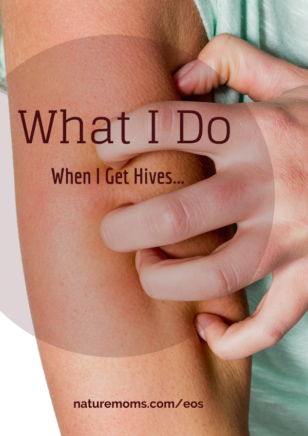 Do Hives Itch - About hives